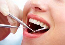 nhổ răng khôn Hải Phòng
