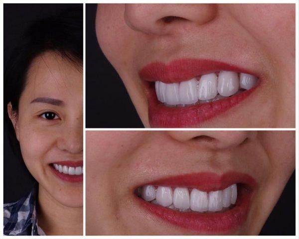 bọc răng sứ đà nẵng