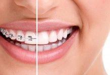 niềng răng trả góp hà nội