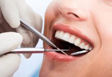 niềng răng trả góp ở tphcm